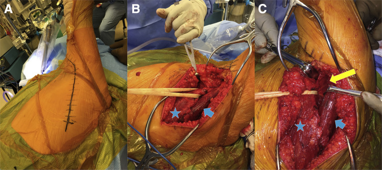 Latissimus Dorsi Tendon Transfer With Acromial Osteotomy